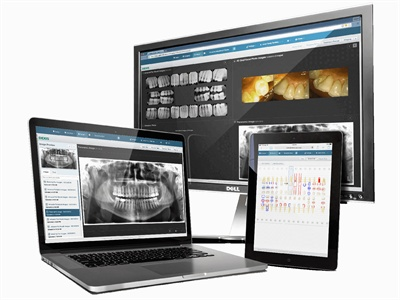 How Your Dental Practice Can Benefit from Cloud Imaging