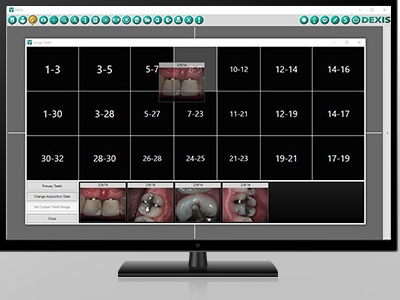 New Dental Product: DEXIS Eleven Imaging Software from DEXIS