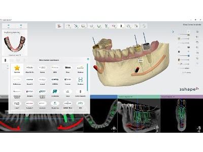 Enhanced Dental Product: Implant Studio 2016 from 3Shape