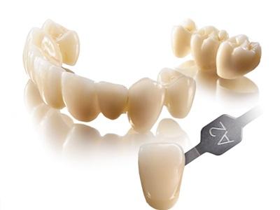 Dental Direkt to License Dental Ceramics Coloring Technology from 3M