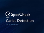 On-Demand Webinar: SpecCheck - Caries Detection Systems