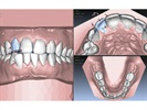 Align Technology Announces Collaboration with Digital Smile Design