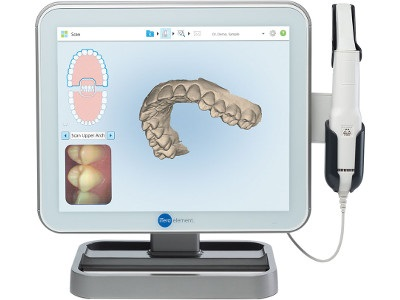 Enhanced Dental Product: iTero Intraoral Scanners Now