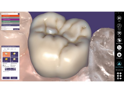 New Dental Products: exoplan, exocad ChairsideCAD and