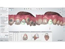 3Shape Orthodontic Indirect Bonding Solution Now Integrates with RMO Bracket Systems