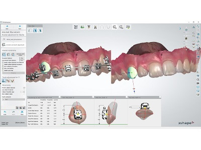 3Shape Introduces Indirect Bonding Solution and Announces Integration with American Orthodontics Bracket Systems