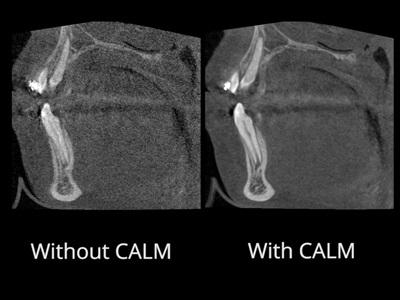 Enhanced Dental Product: Planmeca ProMax 3D Imaging System