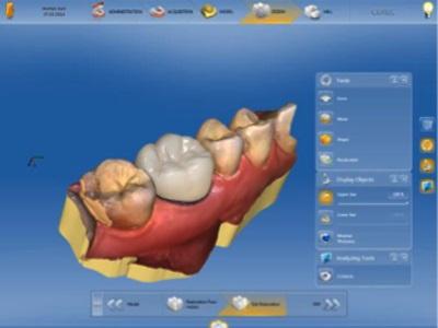 Enhanced Dental Product: CEREC Software 4.5 from Dentsply Sirona