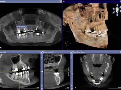 AAP Publishes First 'Best Evidence Consensus' Proceedings on CBCT