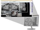 LED Medical Diagnostics Announces Partnership with DSN Practice Management Software