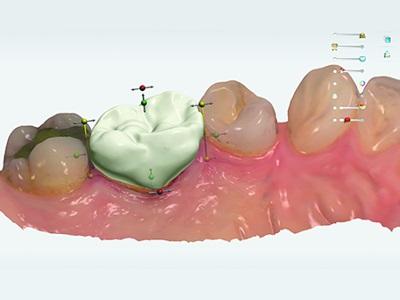 Reaching the Cusp of Digital Dentistry