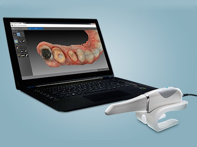 CS 3600 Intraoral Scanner Recognized for Performance in Finish Line Accuracy
