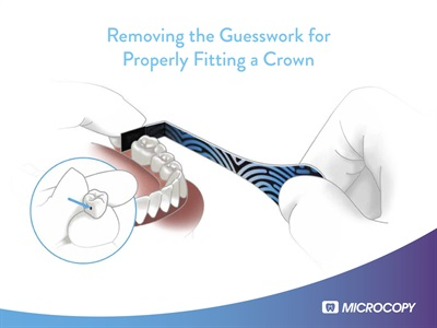 Free eBook: Microcopy's New Solution to Seating a Crown