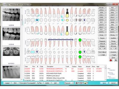 Enhanced Dental Product: Eaglesoft 20 Practice Management Software from Patterson Dental