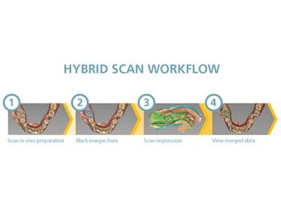 Enhanced Dental Product: CS 3600 Intraoral Scanner Hybrid Scan from Carestream Dental
