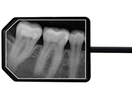 User Review: Apex Dental Sensors are Awesome!