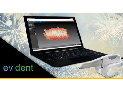 New Dental Product: Evident IOS Service featuring the Carestream Dental CS 3600 Intraoral Scanner