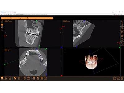 3D Module for XVWeb Cloud Imaging Service from LED Apteryx Earns FDA Approval