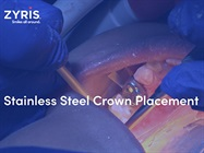 Watch Video: Zyris - ISOLITE® 3 and Stainless Steel Crown Placement