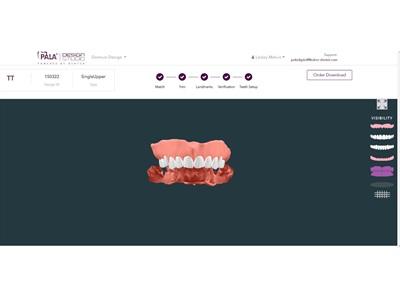 Kulzer Partners with DENTCA for Digital Denture Workflow