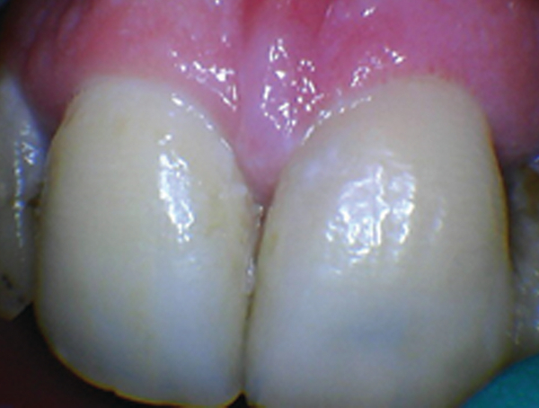 laser gingivectomy post op instructions