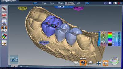 CAD/CAM Design