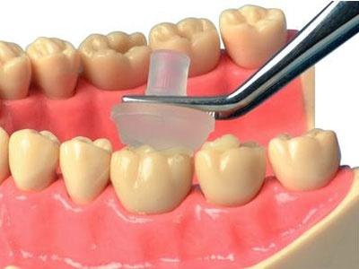 Dental Direct Restorative Materials | Dentalcompare com