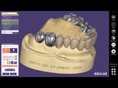 Dental Laboratory CAD/CAM Software | Dentalcompare com