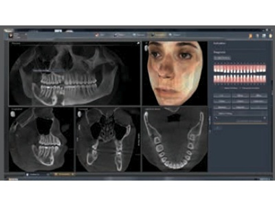 SIDEXIS 4 from Dentsply Sirona Imaging
