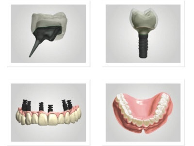 Enhanced Dental Product: Dental System 2015 CAD/CAM Software