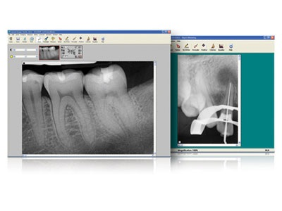 Schick CDR DICOM 5 Digital-X-ray-Software from Schick by Dentsply Sirona