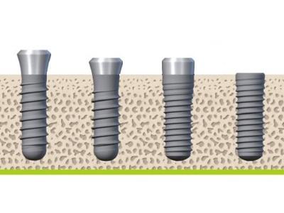 Straumann Dental Implant Systems from Straumann USA
