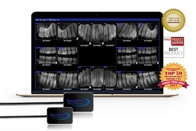 Dental Intraoral X-ray Sensors   Dentalcompare com
